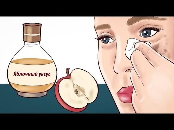 ✅Я смочила тампон в яблочном уксусе и нанесла на лицо. Поразительный эффект!