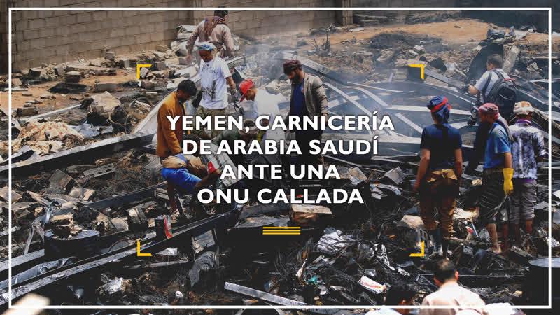 Yemen la carnicer a humana de Arabia Saud ante una ONU callada