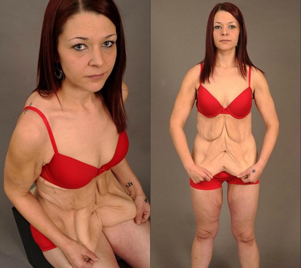 Кожа после резко сброшенного веса
