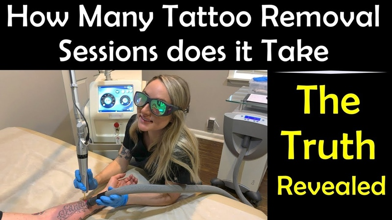 How Many Tattoo Removal Sessions Does It Take The Truth Revealed