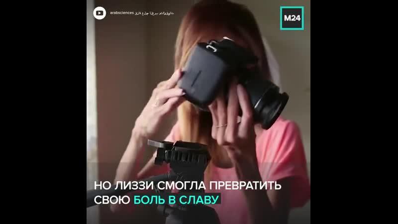 История жизни самой уродливой женщины в мире Лиззи Веласкес Москва 24