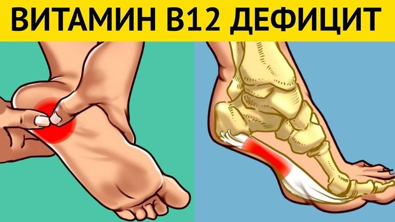 Симптомы Дефицита B12 которые вызывают НЕОБРАТИМЫЕ ПРОЦЕССЫ в организме