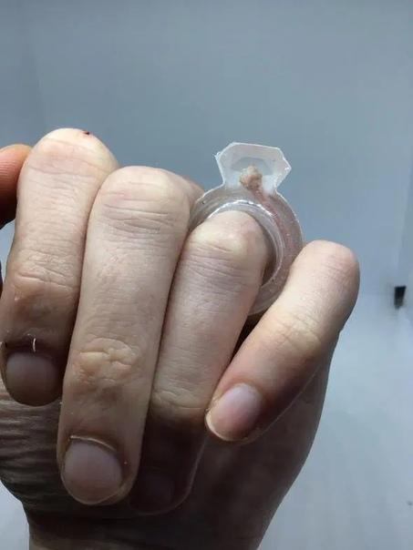 Таксидермистка купила возлюбленному кольцо из мышиного кишечника Пользовательница Faceboo поделилась планами сделать предложение своему возлюбленному и подарить ему кольцо, сделанное из мышиного